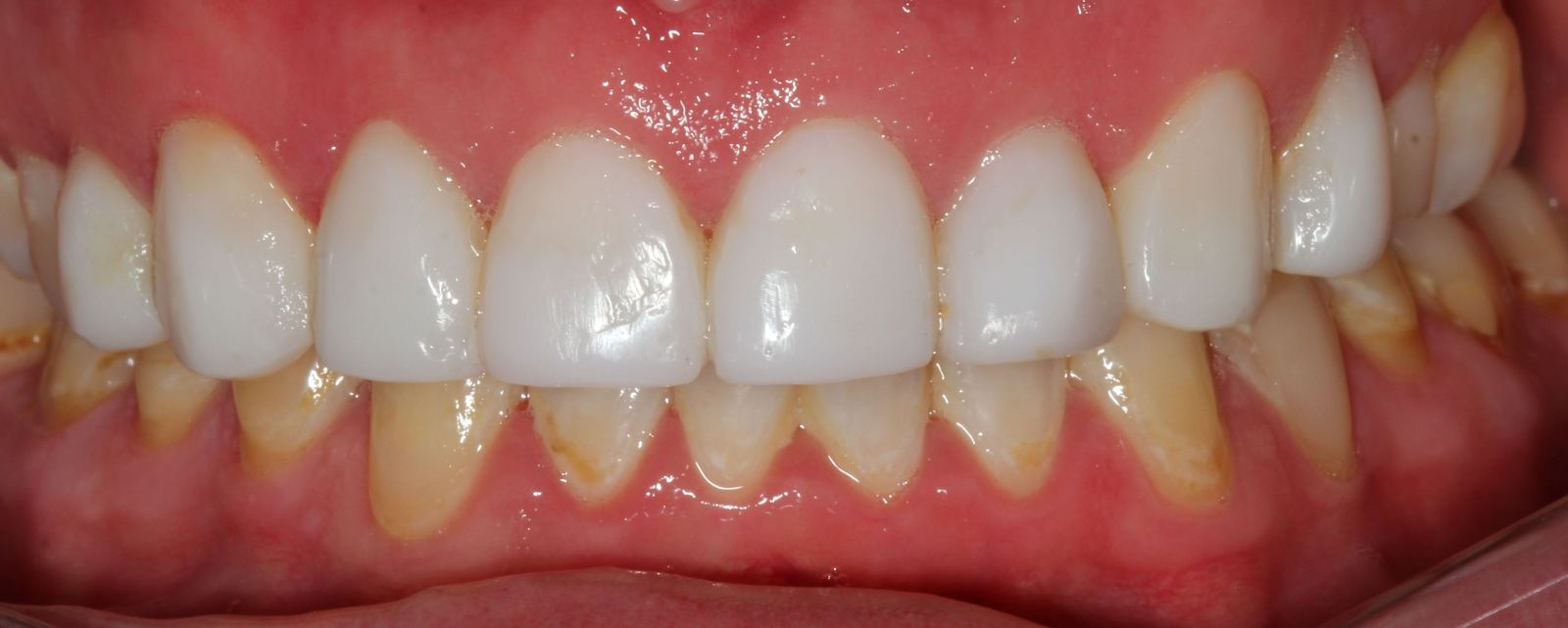 After a smile makeover with Resin veneers. Payment plans available