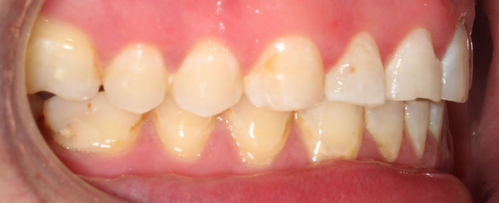 Before resin veneer smile makeover side view