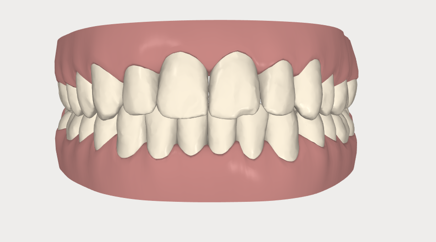 Invisalign closing spaces