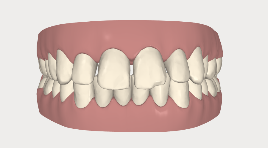 Closing gaps with Invisalign