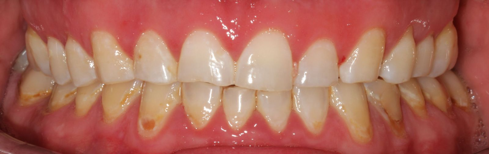 Before resin veneer smile makeover front view