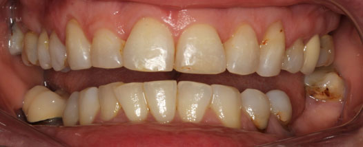 Case - 4:6 month Smiles