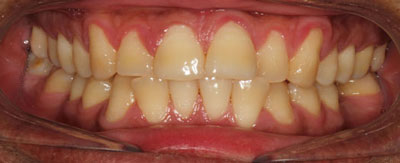 Case - 5:6 month Smiles