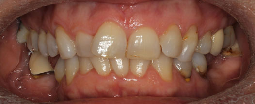 Case-4:6 month Smiles