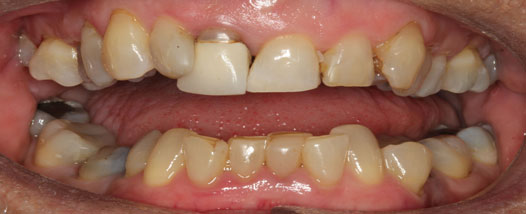 Case - 12:6 month Smiles