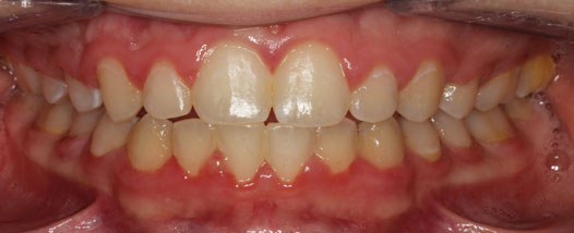 Case - 13:6 month Smiles