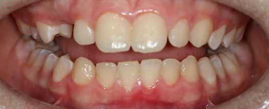 Case-13:6 month Smiles