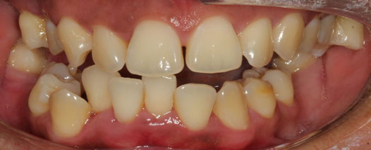 Case - 14:6 month Smiles