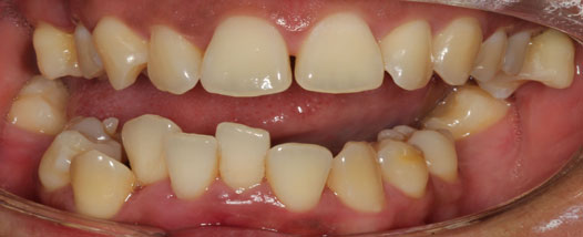 Case-14:6 month Smiles