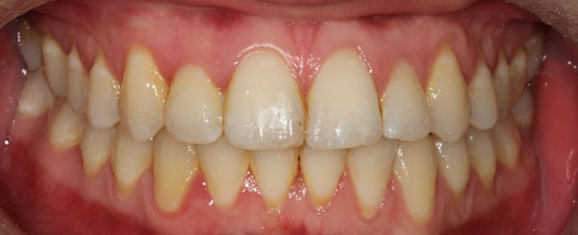 Case - 10:6 month Smiles