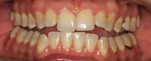 Case - 17:6 month Smiles
