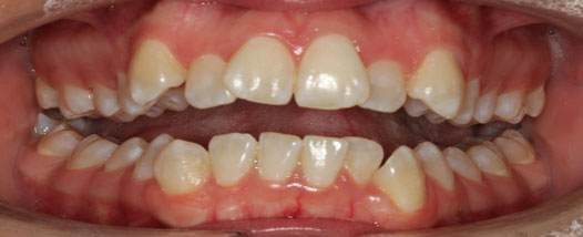 Case-10:6 month Smiles