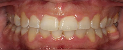 Case - 23:6 month Smiles