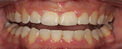 Case-23:6 month Smiles