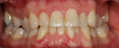 Case - 25:6 month Smiles