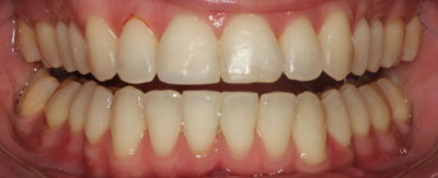Case - 11:6 month Smiles