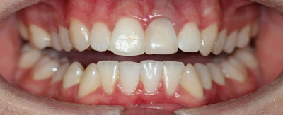 Case-9:6 month Smiles